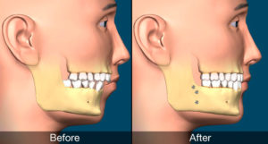 virtual model of a patient's teeth before and after surgical orthodontics