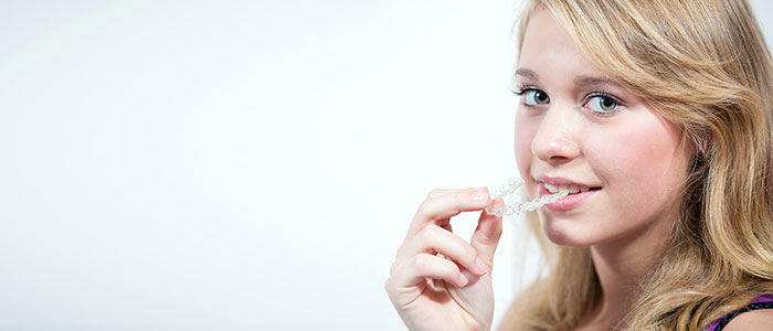 Young female patient putting in Invisalign aligners